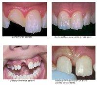 Qué hacer ante un diente dañado
